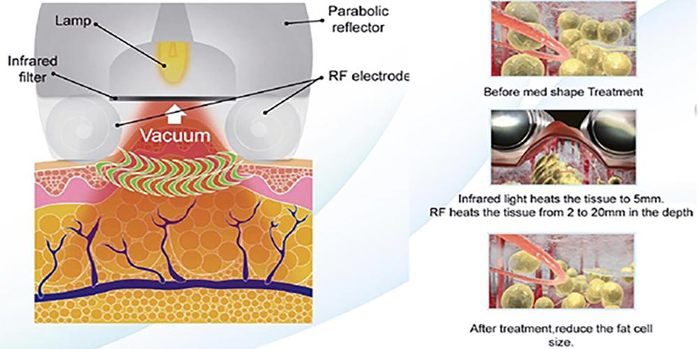 Kuma Shape 3 RF Vacuum Massage Rollers and Infrared Body Contouring Device