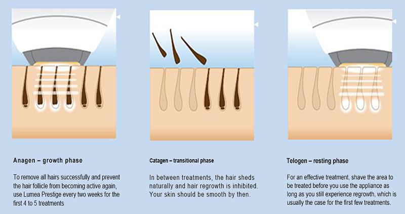 Portable IPL Laser Hair Removal