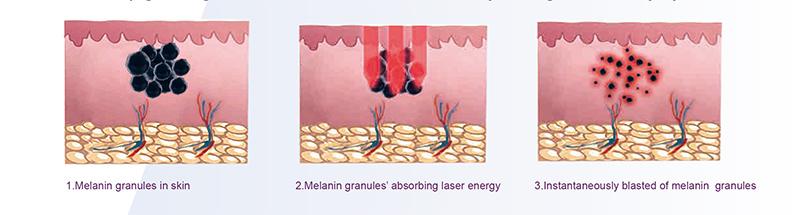 yag-laser.1.jpg