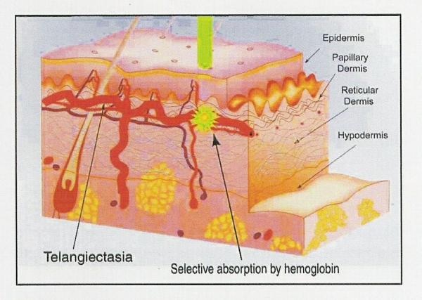 Does IPL Make the Skin Thinner