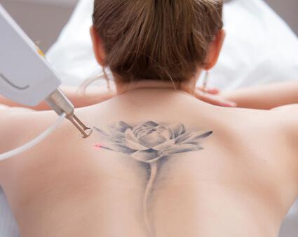 Láser para quitar tatuajes
