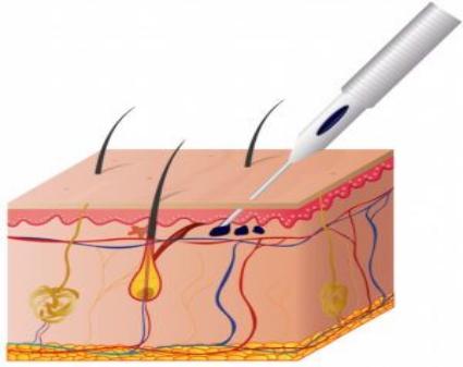 Precautions After Facial Laser Surgery