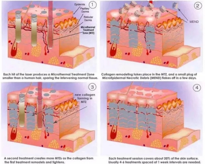 Q-Switched ND YAG Laser_Gentle Removal Of Melasma