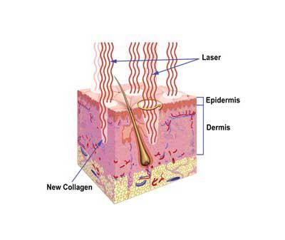 Photon Rejuvenation Solves Your Skin Problems